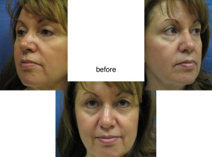 Voluma R-Lift Before Patient 2 | Dr. Lisa Bunin | Before and After Photos | Allentown PA