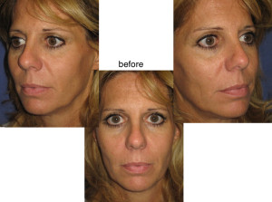 Voluma-R Lift Before Patient 1 | Dr. Lisa Bunin | Before and After Photos | Allentown PA