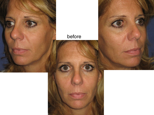 Voluma R-Lift Patient 1 | Dr. Lisa Bunin | Before and After Photos | Allentown PA