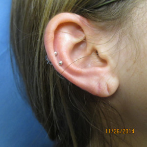 torn earlobe after repair, Allentown, PA