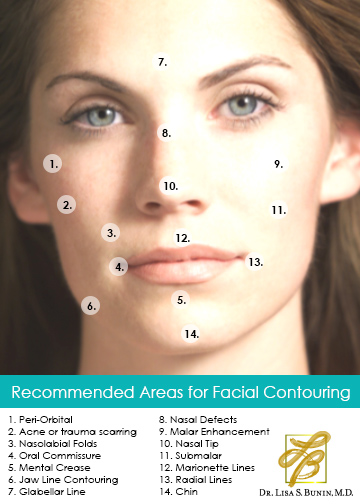 Facial Contouring Diagram | Dr. Lisa Bunin | Allentown PA
