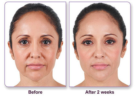 For that Facial before and after photos opinion you