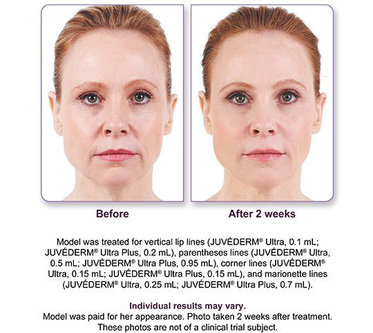 Juvederm Ultra Plus XC Before and After 2 | Dr. Lisa Bunin | Allentown PA