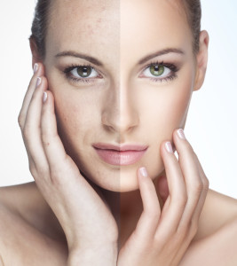 Woman with Aging Face | Dr. Lisa Bunin | Allentown PA