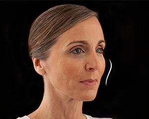 Voluma Patient 1 After | Dr. Lisa Bunin | Allentown PA