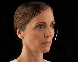 Voluma Patient 1 Before | Dr. Lisa Bunin | Allentown PA
