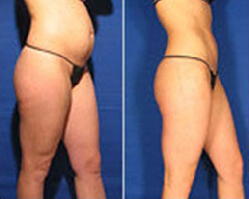 Abdominal Laser Liposuction Before And After