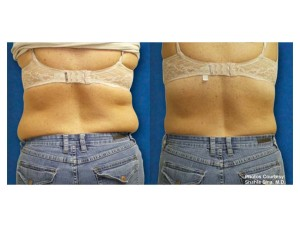Zerona Before and After Back | Dr. Lisa Bunin | Allentown PA