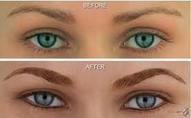 Lisa Bunin Md Permanent Makeup Before