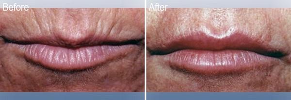 Restylane-Lips-Before-3-Dr-Lisa-Bunin