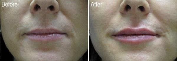 Restylane-Patient-2-Before-Dr.-Lisa-Bunin
