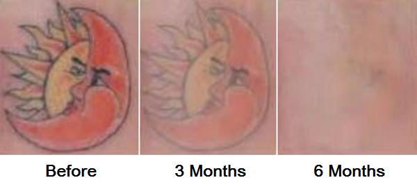 Tattoo1 072016