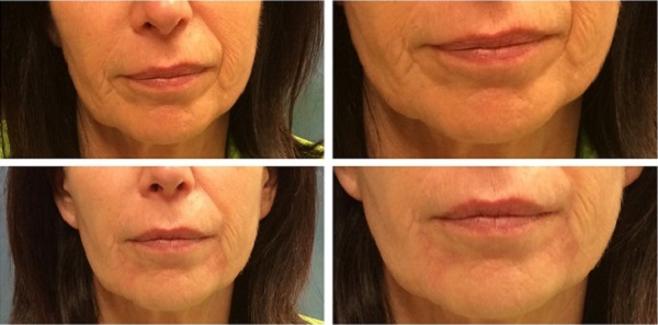 Lisa Bunin MD | Restylane® Refyne & Defyne for the Face