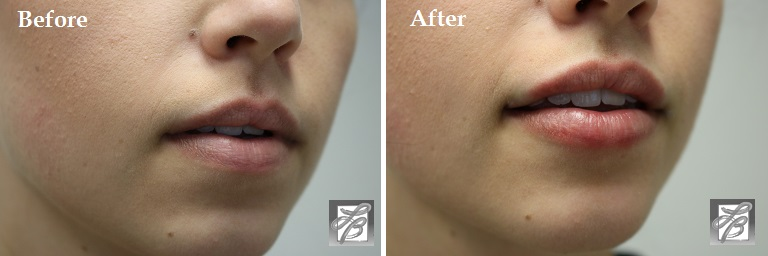 Lisa Bunin MD | Lip Enhancement Before & After Pictures