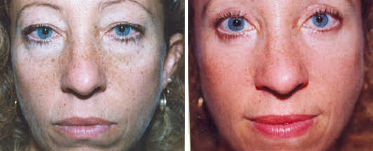 Invisible Blepharoplasty | Dr. Lisa Bunin