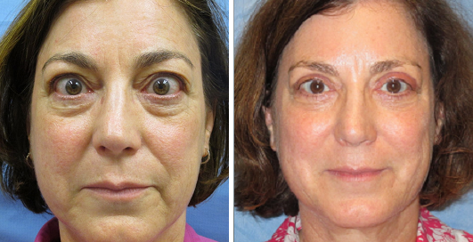 Allentown, PA | Eyelid Surgery